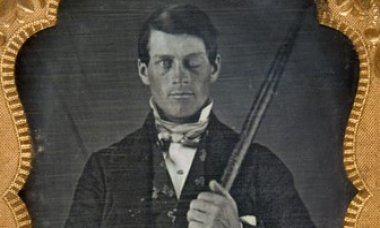 why-scientists-fascinated-phineas-gage